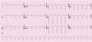 Dr  Smith U0026 39 S Ecg Blog  Tachycardia With Pericardial Effusion