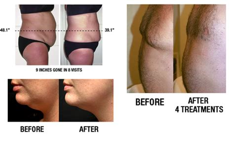 contour light body sculpting before and after lipo light path integrative health center