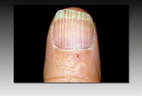 Vitamin Deficiency Fingernails