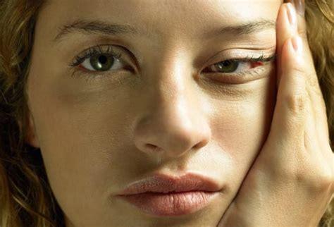 visual guide  chronic fatigue syndrome