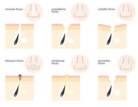 Große, poren verfeinern - in 3 Schritten zum reinen hautbild