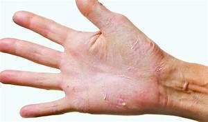 Пальцы рук кожа грибок облазит
