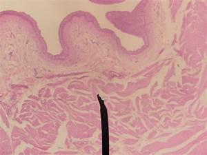 Urinary Bladder