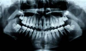 Scientists Have Discovered A Drug That Regrows Teeth And