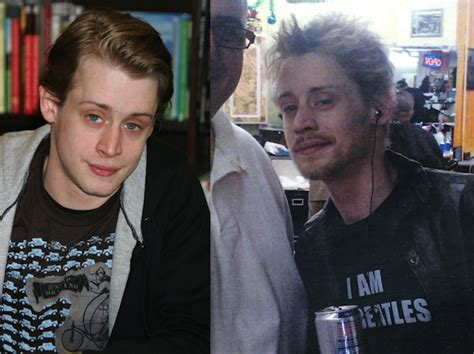 Famous Faces Ruined By Drugs  Oh No They Didn't