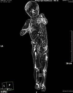 CT scans of Pompeii victims reveal bodies in unprecedented ...