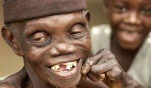 Ugly People In The World Pictures to Pin on Pinterest ...