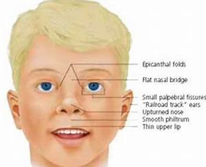 Angelman syndrome facial features
