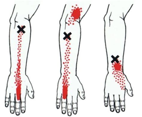 pijnlijke spieren armen en benen
