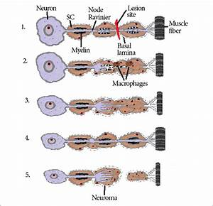 Pns Axon Injury And Regeneration  1  During The First Days