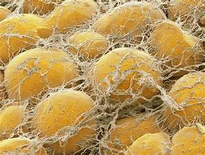What U0026 39 S In A Fat Cell