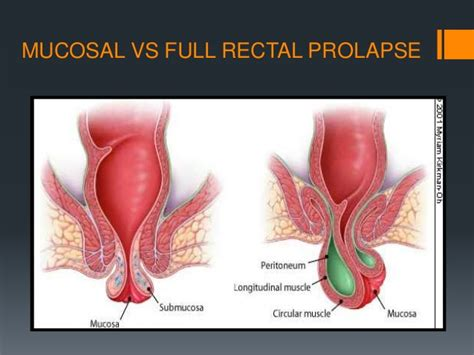 The gallery for --> Rectal Prolapse Vs Hemorrhoids