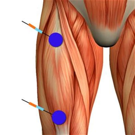 Electrode placement The straight thigh muscle   physical