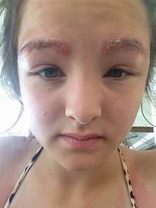 Schoolgirl has her eyebrows burnt off by local beauty ...