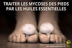 Mycose du pied : sympt mes