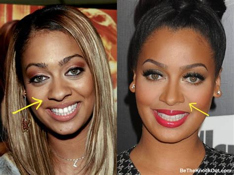 lala anthony plastic surgery comparison