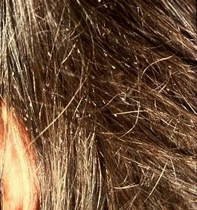 Nits Head Lice Causes Symptoms Treatment Nits Head Lice