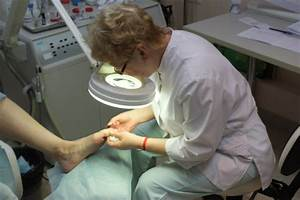 Лаки лечение грибка ногтей