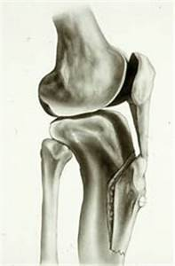 Surgical correction of recurrent patella instability ...