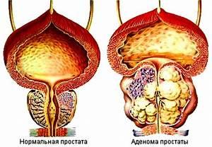 Простата форте описание препарата