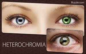 Fascinating Facts About Rare Eye Colors