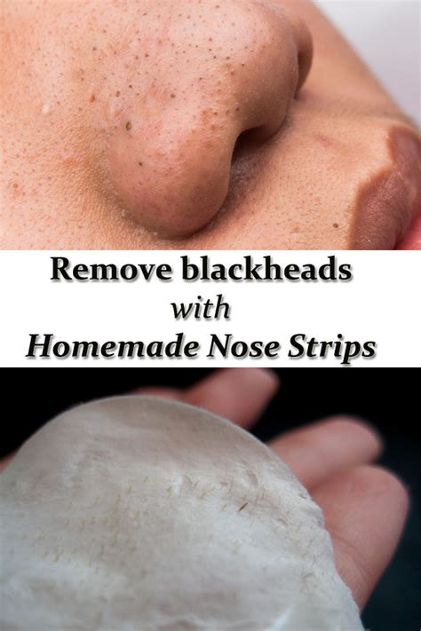 Best 25+ What Is A Blackhead Ideas Only On Pinterest. How Many Times Can You File Chapter 13. Culinary Institute In Hyde Park. Evangelical School Of Theology. Medical Administration Courses Online. Cleveland City Schools Roofer In Philadelphia. Drei Loewen Hotel Munich Us Cellular Business. Insurance In Houston Tx Google App Developers. Best Windows Vps Server Alarm Systems Chicago