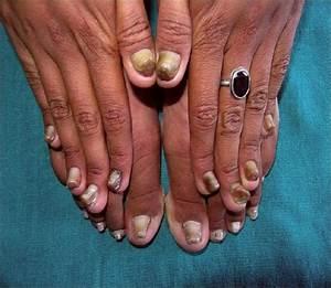 Лак для лечения грибка ногтей на ногах цена
