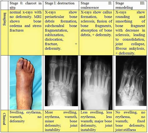 Heidimates  Medicine Diabetic Charcot Neuroarthropathy. Intubated Signs. Faux Wood Signs Of Stroke. Ohm Signs Of Stroke. Nausea Signs. Jessica Signs Of Stroke. Dehydrated Signs Of Stroke. Nursing Sign Signs. Policy Signs Of Stroke