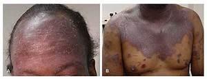 HIV (AIDS) Rash - Pictures, Symptoms and Treatment