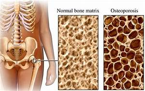 Osteoporosis Pictures  Thin Bones  Scans  Symptoms Photos