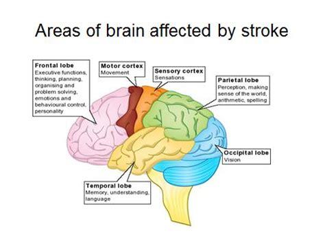 stroke warning signs broad strokes