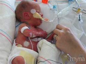premature babies exposed to unsafe chemicals in nicu myria