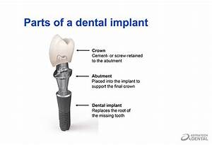 35 Dental Implant Parts Diagram