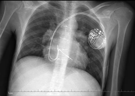 dual chamber icd bing images