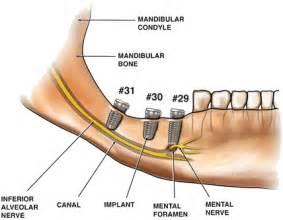 Dental Malpractice Central Malpractice and the Inferior
