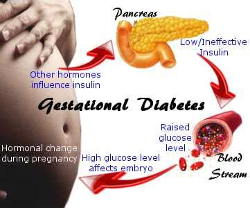 diabetes types prevention control treatment home remedy