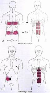 1000  Images About Trigger Points On Pinterest