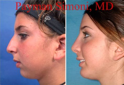 Rhinoplasty Beverly Hills  Nose Job Surgery Los Angeles. Motorhome Insurance Costs Mr Roof Commercial. Chester County Family Court Cd Print Label. Common Law Marriage In Maryland. Quotes On Addiction Recovery. Can Constipation Cause Abdominal Pain. Southwest Technical College Why Buy A Lexus. Phoenix Chevy Dealership Central Phone System. Holy Family School Of Nursing