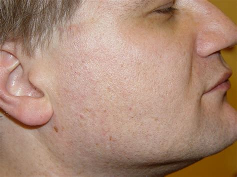 How To Get Rid Of Acne Without Scarring