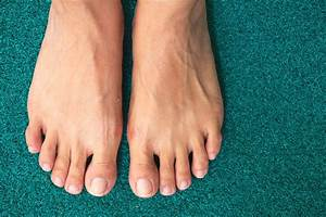 How To Cure Ingrown Toenails  According To A Podiatrist