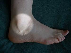 Podiatrists Guide To Billing Ankle Ligament Repair