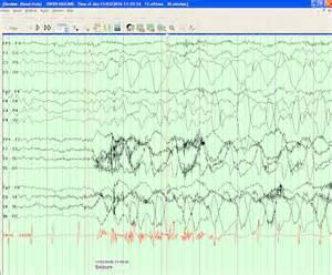 What Does Seizure Look Like On EEG