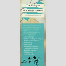 17 Best Ideas About Fungal Infection On Pinterest Herbal