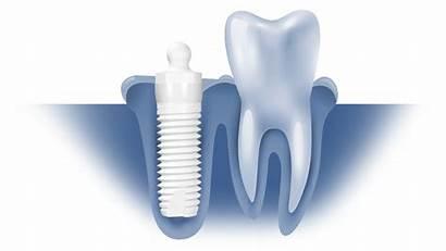 Dental Ceramic Implant Implants System