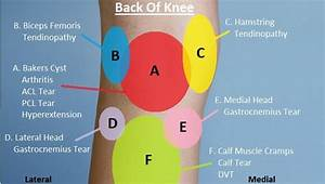 Knee Pain Diagnosis Chart
