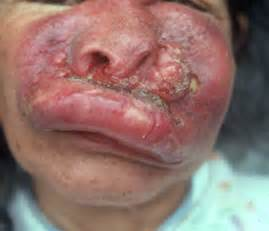 cyst is a closed sac, having a distinct membrane and division ... Nasopharyngeal Cancer