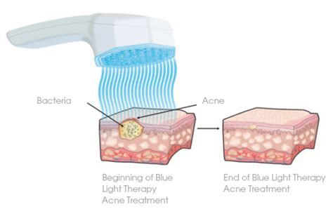 acne light therapy fda approves pulsaderm new blue led skincare product