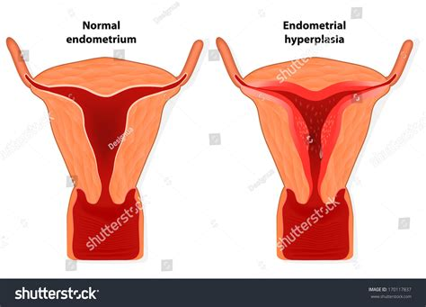 shedding of uterine lining without blood endometriosis endometrial hyperplasia is an overgrowth of
