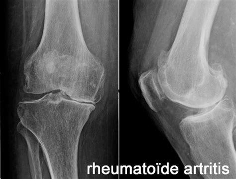 Is het nu reuma, artrose of artritis?