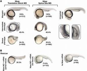 Nbas is essential for zebrafish embryonic development. (A ...